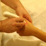 Laserpunktúra